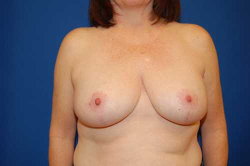 Breast Reduction Utah
